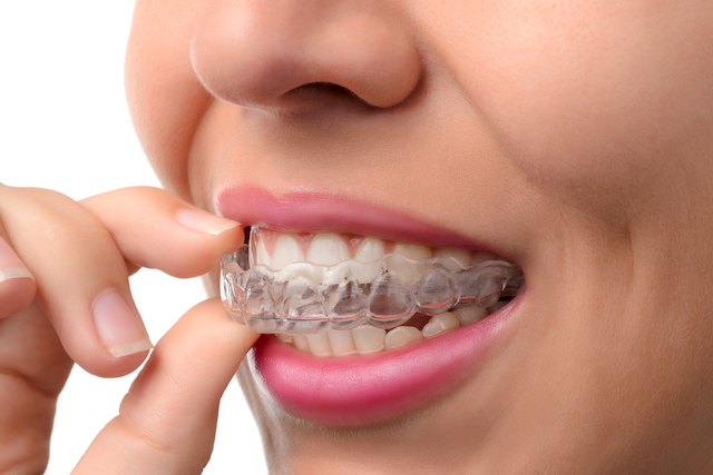 Invisalign Fairfield