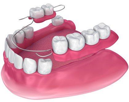 partial dentures point cook